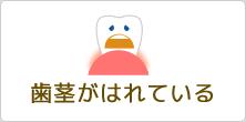 歯茎がはれている